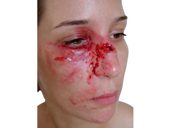 Fausse plaie - Fracture du nez avec pommettes gonflées