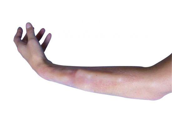 Fausse plaie intérieure - Fracture non ouverte Bras / Avant bras / Clavicule