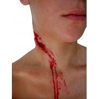 Fausse plaie hémorragique du cou