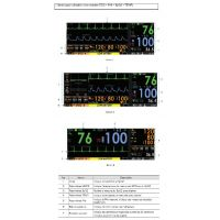 Moniteur multiparamétrique PRIZM 3 - Ecran Couleur