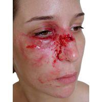 Simulation de blessure du nez - Fracture avec pommettes gonflées