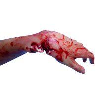 Fausse plaie - Fracture ouverte